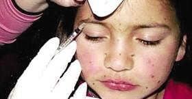 bambina-botox