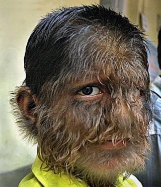 werewolf_sindrome